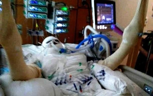 Школярка підпалила себе через інтернет-флешмоб