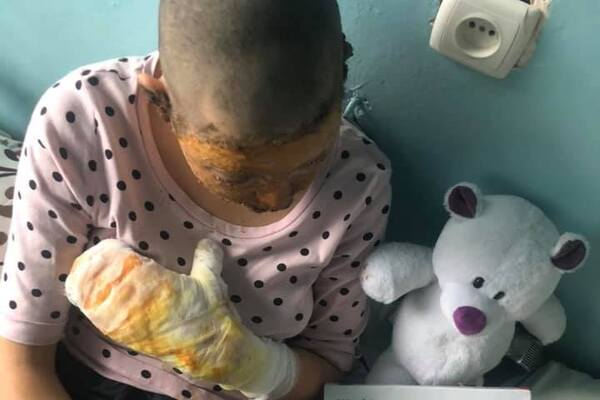 Терпить пекельні болі: в Чернівцях п'яний батько підпалив 16-річну дочку і ледь не убив її. Фото 18+