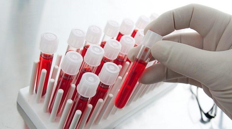 Простий тест крові розкаже, чи будуть у вас ускладнення від COVID-19 — вчені
