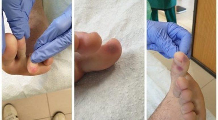"""""""Подивіться на пальці"""": вчені назвали новий симптом коронавірусу, який нагадує обмороження"""