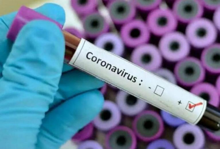 """Коронавірус розвивається та стане """"мирним"""" – вірусолог"""